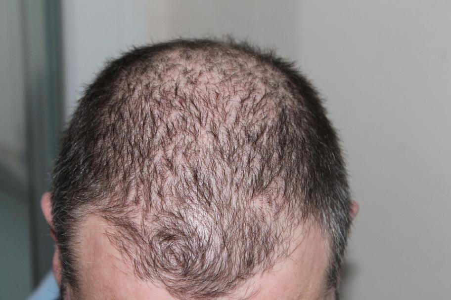 Claves para evitar la caída del cabello